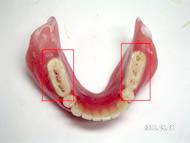 治療用義歯②